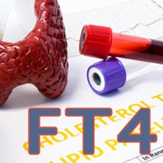 Ý nghĩa xét nghiệm FT4
